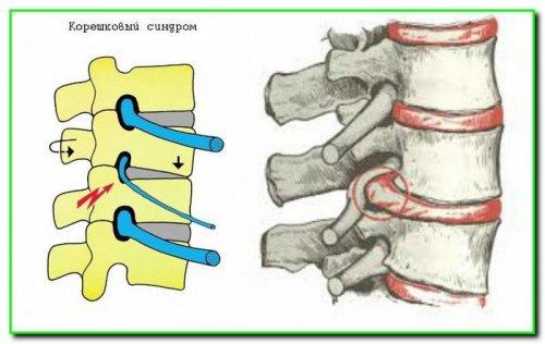 Остеохондроз шийного відділу хребта